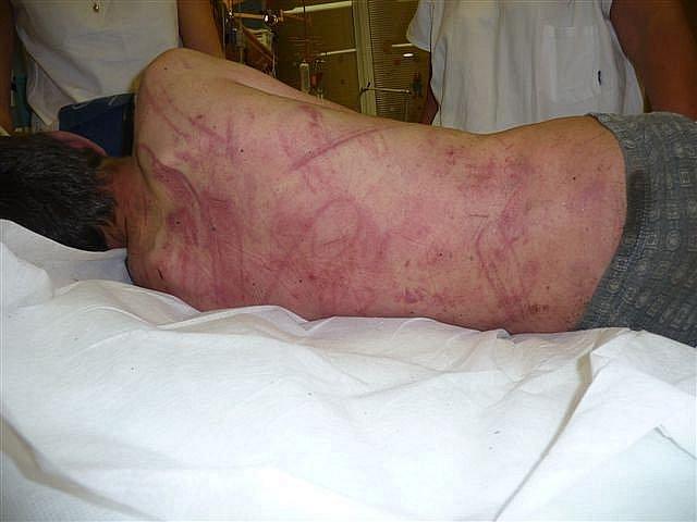 Třináctiletý chlapec skončil po napadení v Masarykově nemocnici.