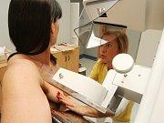 Mamograf. Ilustrační foto.