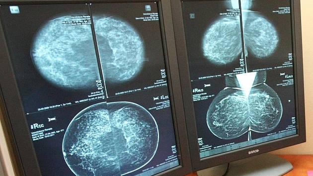 Digitální mamograf šetří prsa pacientek a čas lékařů.