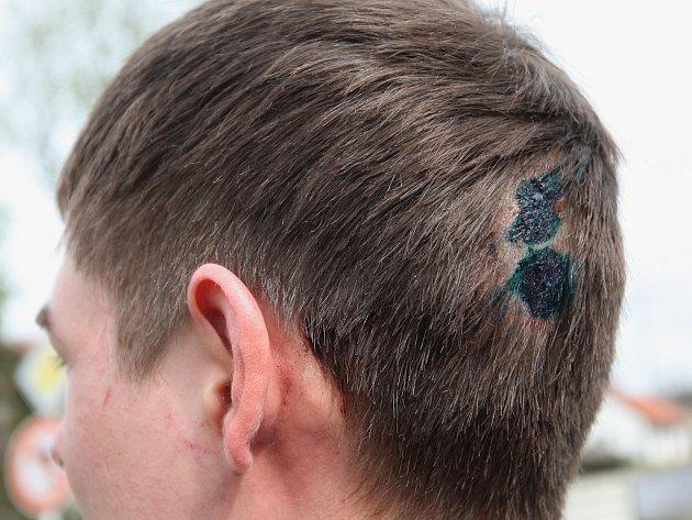 Lékaři napadenému dvaadvacetiletému muži na několika místech sešili zranění na hlavě.