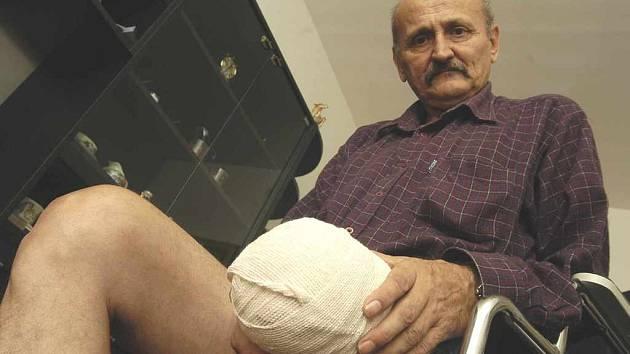 Z nemocnice se vrátil Miloš Kádner bez nohy.