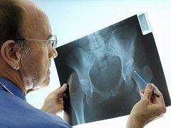 Osteoporózou trpí každý patnáctý Čech, více trápí ženy. Ilustrační foto.
