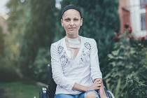Mladou studentku ústecké univerzity Terezu Bártovou mohou lidé podpořit zasláním finanční částky na účet i zakoupením charitativního kalendáře.