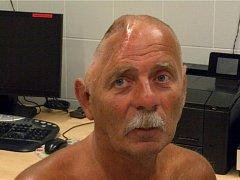 Neurochirurgové voperovali muži titanovou náhradu do hlavy. Jako první v České republice.