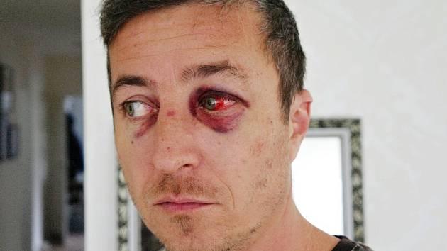 Jan Rytíř má po zranění obličeje trvalé následky. Špatně vidí na jedno oko.
