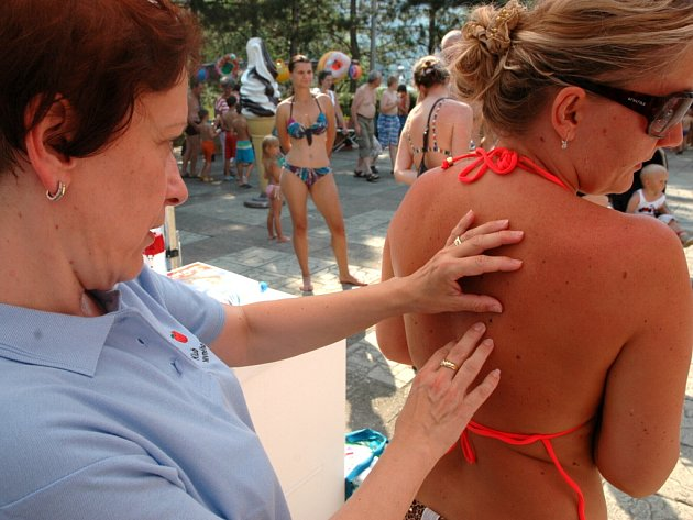 Návštěvníci koupaliště v Brné si mohli nechat zkontrolovat znaménka na kůži, kvůli melanomu.
