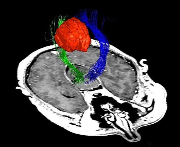Mozkový nádor - ilustrační foto.