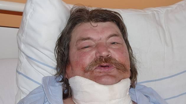 Vítězslav v nemocnici.