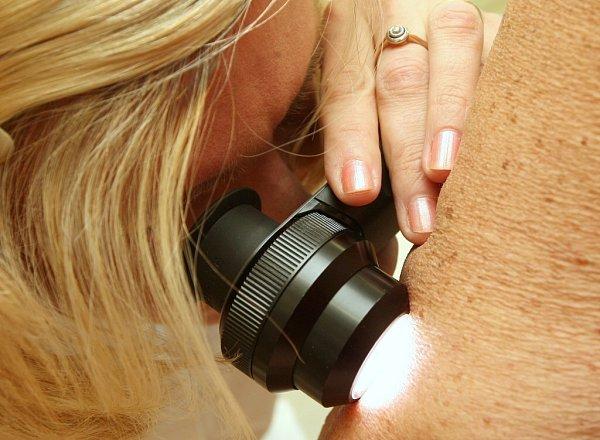 Evropský den melanomu přilákal zhruba dvě stovky lidí, lékaři je prohlédli bezplatně.