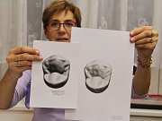 Třetí ročník soutěže kreslení a modelace zubů Ústecký dent