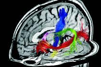 Zobrazení mozkových drah pomocí traktografie modrá je dráha hybnosti, zelená řečová dráha, růžová dráha zobrazuje fornix důležitý pro paměť člověka.