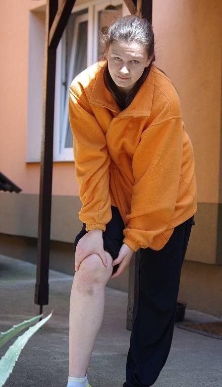 Dcera Jany Huckové ukazuje zhmožděné koleno.