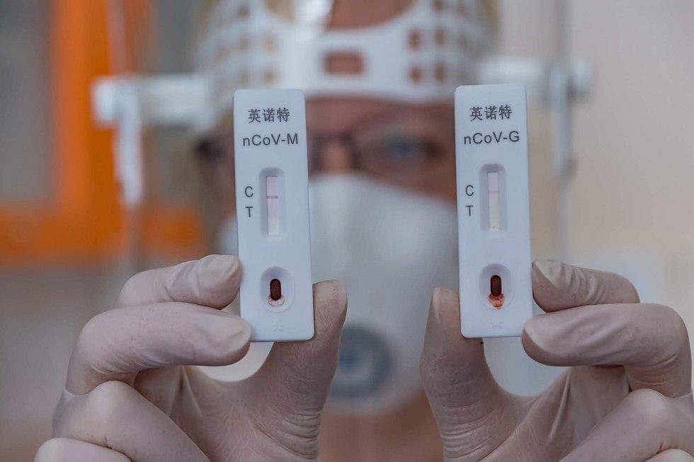 Dva tisíce rychlotestů na nový typ koronaviru dorazily do nemocnic Zlínského kraje. V praxi je právě v těchto dnech začala zkoušet Uherskohradišťská nemocnice a také Krajská nemocnice Tomáše Bati ve Zlíně.