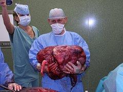Zlínští lékaři ženě odoperovali 36 kilo vážící nádor