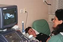 Metodou OSCARlze zjistit vývojovou vadu plodu již v 11. týdnu těhotenství
