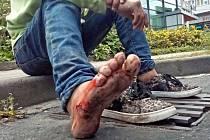 Ve čtvrtek 17. září se u frekventované křižovatky v centru Zlína motal podnapilý muž. Jeden z automobilů mu přejel přes nárt nohy.