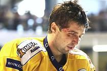 Start hokejisty Jaroslava Balaštíka v začátku hokejové extraligy je po zranění nejistý.