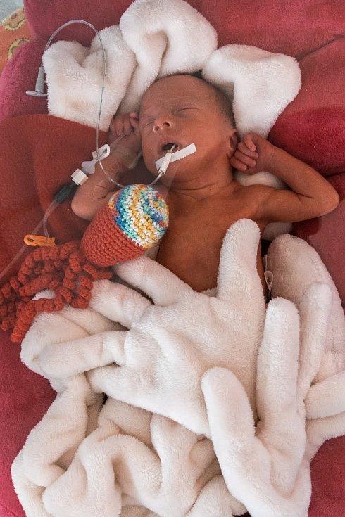 V KNTB se narodila trojčata Kristýna, Sára a Adam. Na snímku Sára.