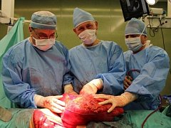 Tým operatérů (zleva prim. J. Hynčica, prof. J. Klein, MUDr. G. Khalil) s vyoperovaným dvanáctikilovým nádorem.