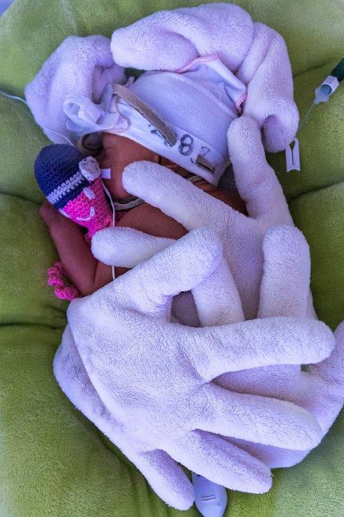 V KNTB se narodila trojčata Kristýna, Sára a Adam. Na snímku Kristýna.