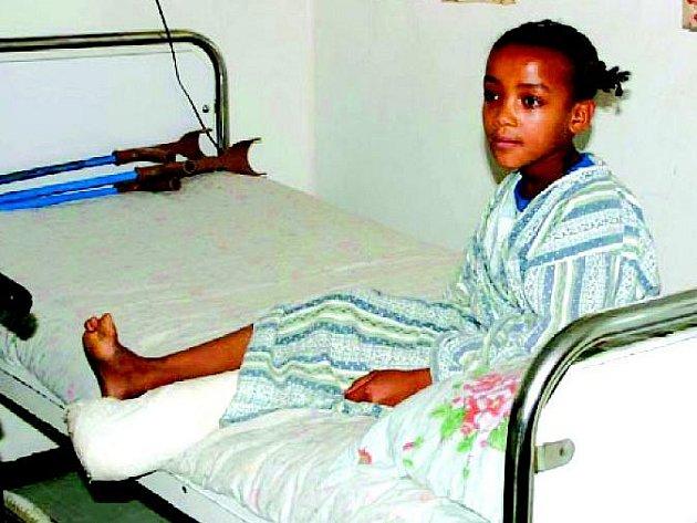 Obrnou postižené děvče je po operaci a následně bude rehabilitovat v centru Menagesha v Etiopii.