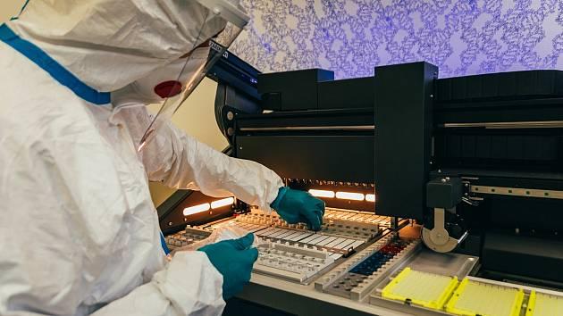 Nový plně automatizovaný přístroj pro vyhodnocování vzorků odebraných lidem s podezřením na onemocnění SARS-CoV-2