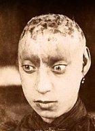 Toto děvče trpělo schizofrenií. V jejím důsledku si vyrvala vlasy, až jí po nich zůstaly nevzhledné rány.