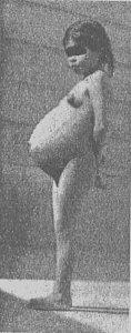 Malá Liza v sedmém měsíci těhotenství. Žádná jiná její fotografie z těhotenství neexistuje.