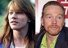 I zpěvák legendárních Guns'n'Roses propadl plastikám. Neprospělo mu to.