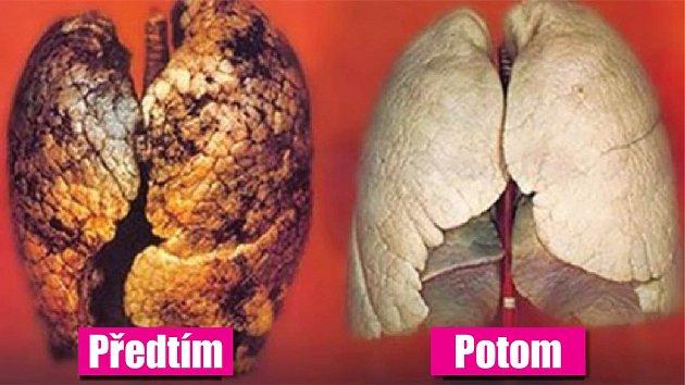 Vaše plíce mohou být za několik dní zase čisté.