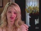 Dívka v dobách, kdy se zotavila z nejhoršího, ale ještě ji čekala řada plastických operací.