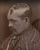 Muž, který měl vzácné kožní onemocnění. Místo, aby ho líčili, dali ho do blázince.