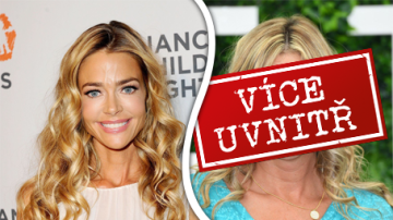 Co to má Denise Richards s obličejem?