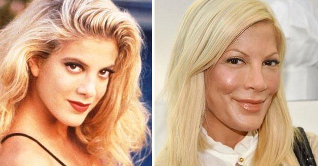 Hvězdy BEVERLY HILLS 90210. Jak je změnil ČAS od první klapky v roce ...