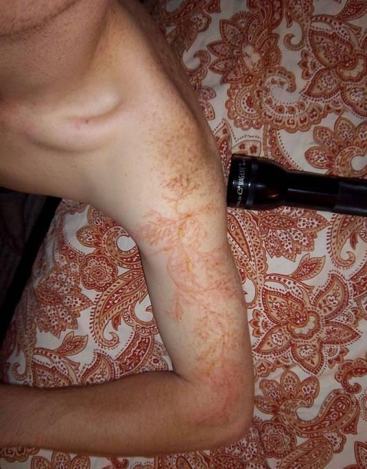 Bleskové tetování. Vypadá možná zajímavě, nic příjemného to není.