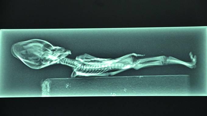 Rentgen odhalil kompletní kostru. Patrné jsou ipozůstatky vnitřních orgánů.