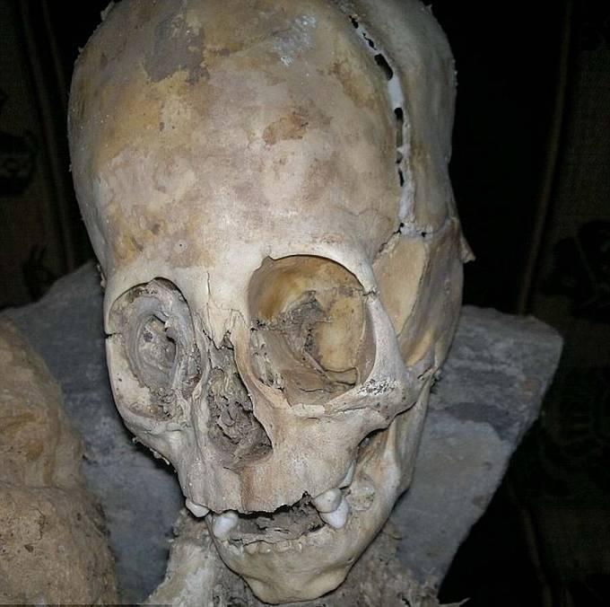 Výrazné oční důlky, stoličky a švy. Bizarní lebka z Andahuaylillas.