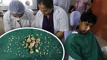 """Letos opravdu rostou. Indičtí zubaři počítají """"úrodu""""."""