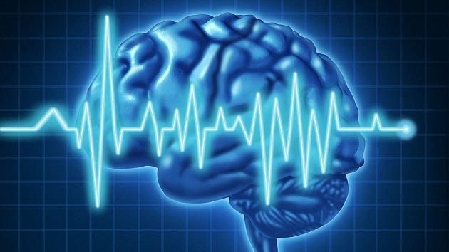 Mozek je ve chvíli smrti nebývale aktivní.