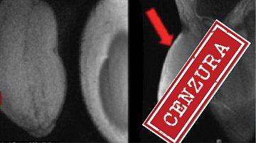 Mladíkovo přirození na rentgenovém snímku před zákrokem.