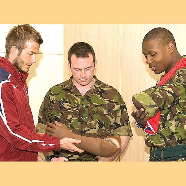 David se zdraví s vojákem, jehož protéza mu vzápětí skončila v ruce.