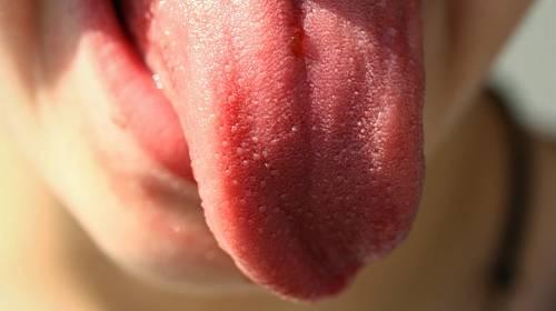 Covidový jazyk