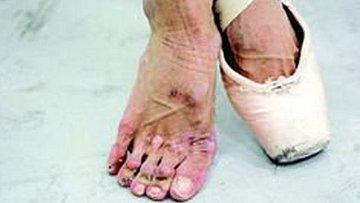 Deformované nohy baletek
