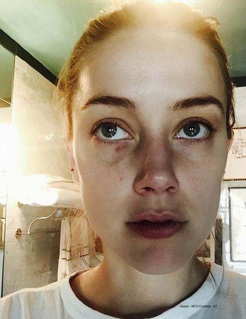 Amber Heard ukazuje pohmožděniny, které jí měl Depp způsobit