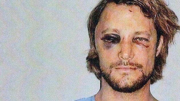 Takhle vypadal Gabriel Aubry po rvačce Olivierem Martinezem