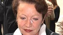 Hana Maciuchová měla náplast na nose po drobném chirurgickém zákroku!