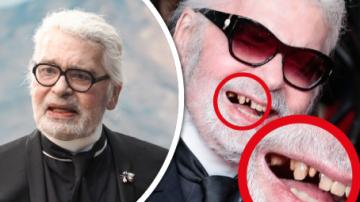 Karl Lagerfeld tu zuby ještě má.