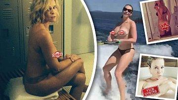 Chelsea Handler studem nijak netrpí.