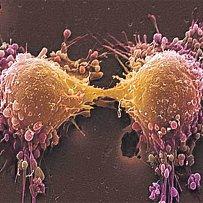 Takto vypadají rakovinné buňky po rozdělení.