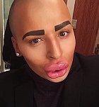 Jordan James Parke je pětatřicetiletý muž z Alabamy. Jeho snem je vypadat jako Kim Kardashian a za svůj vzhled utratil více než 200 000 dolarů. Většina plastických chirurgů už ho nechce operovat, protože má ve rtech nebezpečné množství kolagenu.